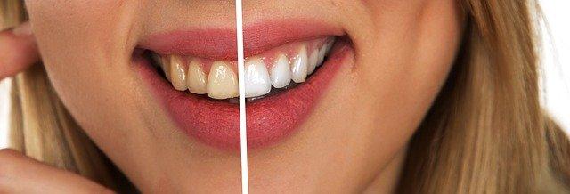 מהן השיטות הנפוצות להלבנת שיניים?